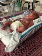 newborn in NICU